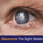 Glaucoma-The Sight Stealer