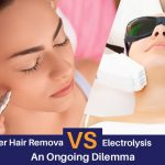 Laser Hair Removal vs. Electrolysis: An Ongoing Dilemma
