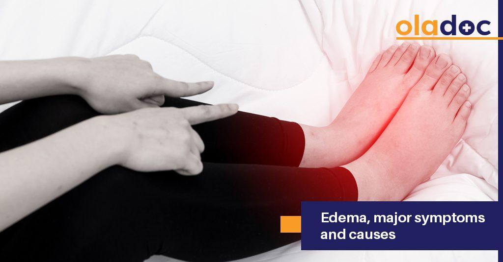 Edema: major symptoms and causes