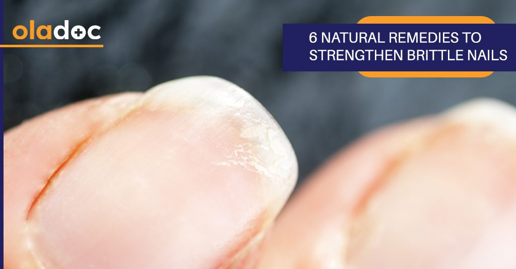 6 natural remedies to strengthen brittle nails