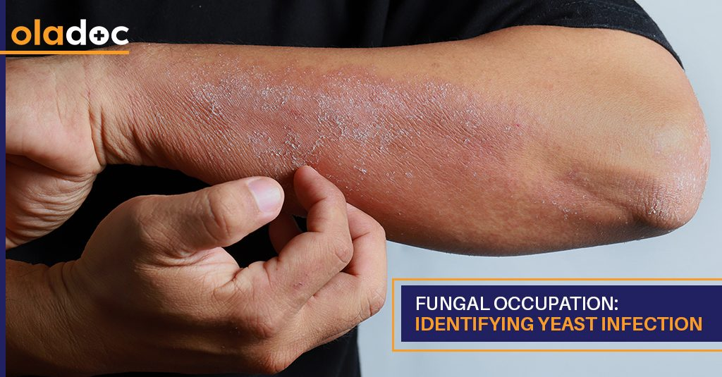 fungal_infections