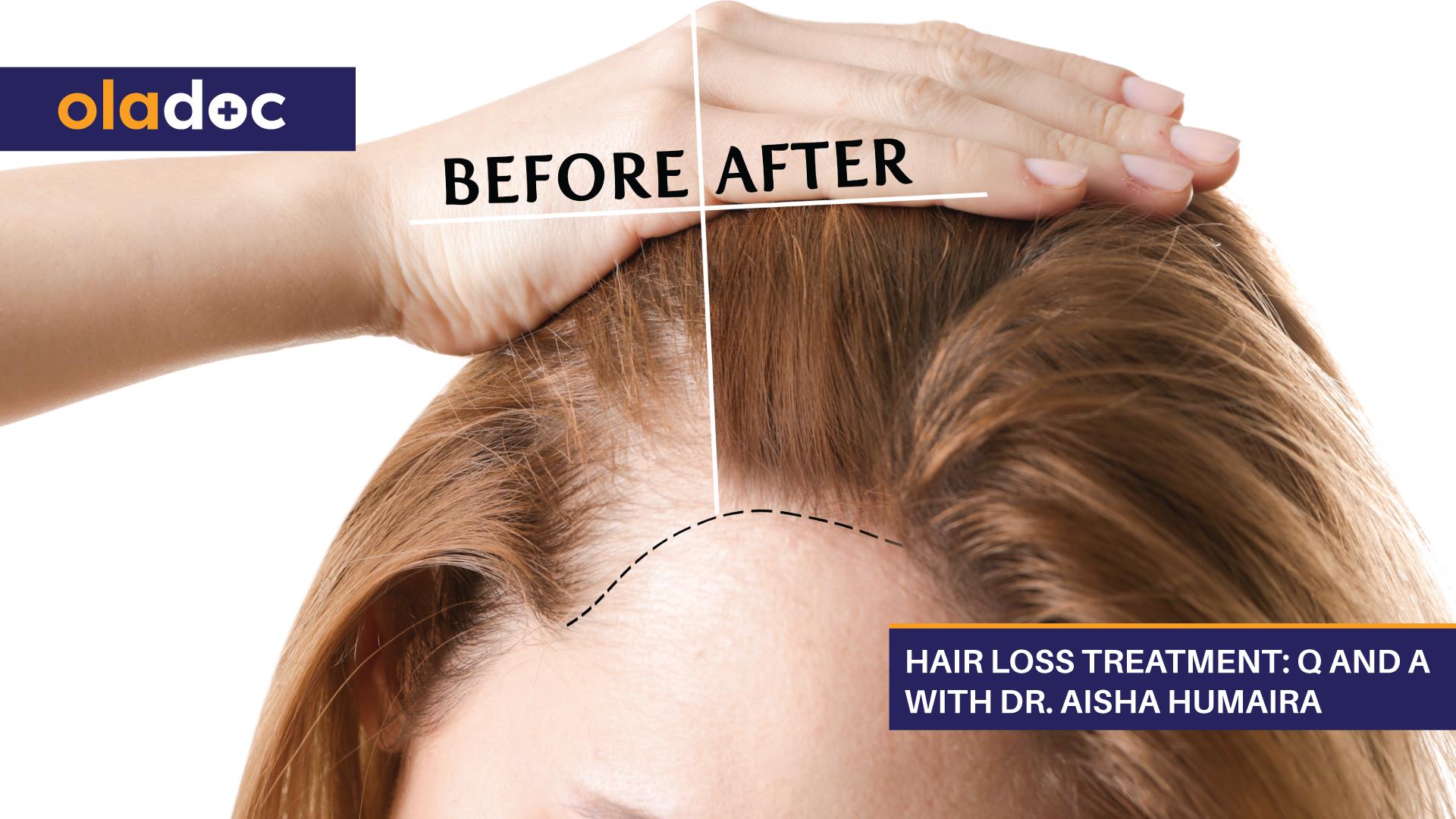 Hair Loss Treatment: Q And A With Dr. Aisha Humaira