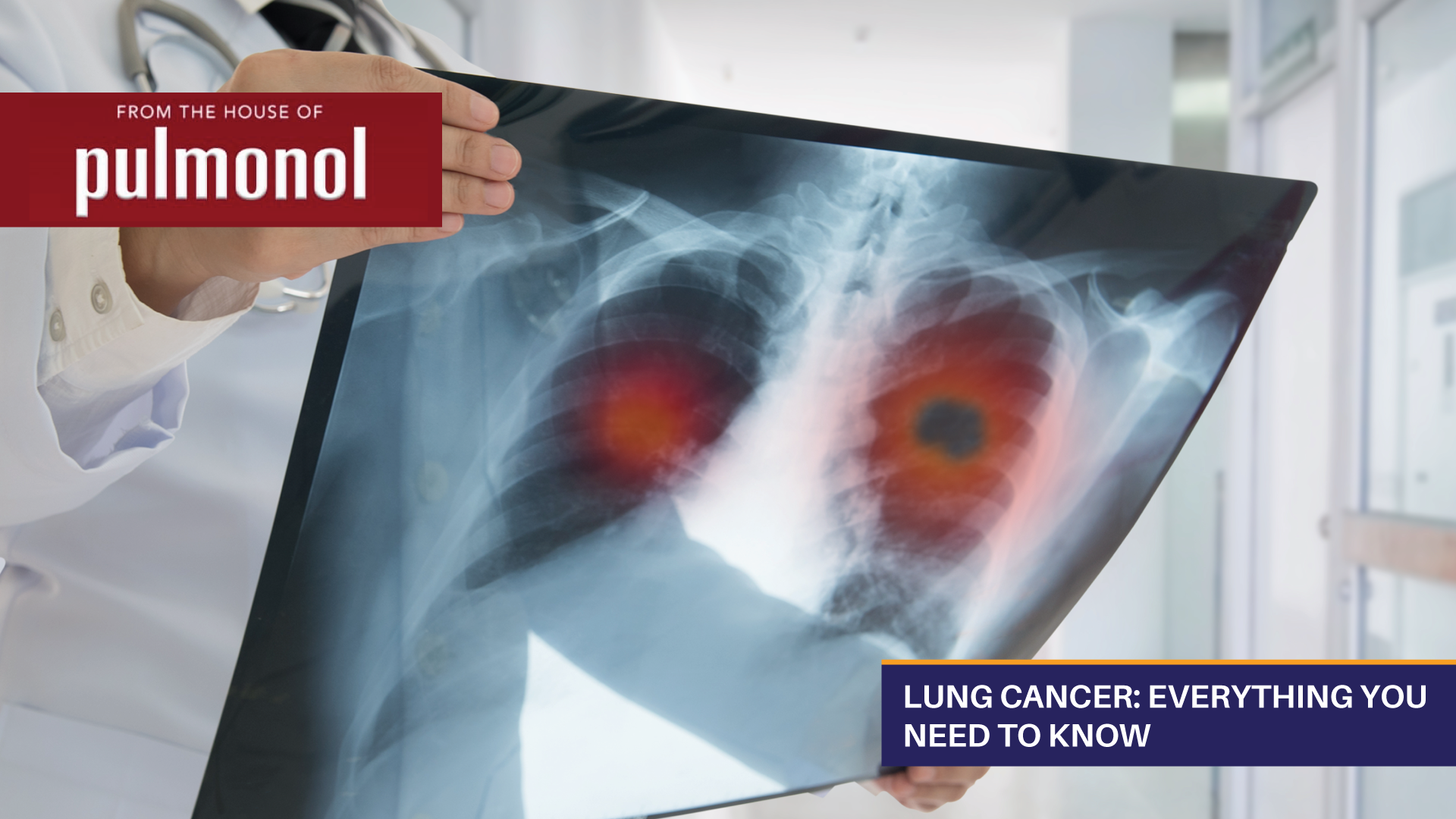 Lung Cancer: Everything You Need To Know